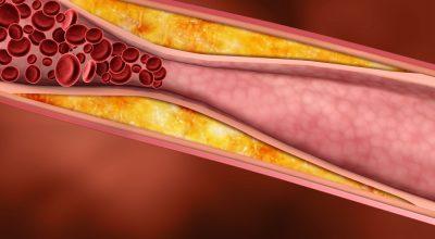 Холестерин в сосудах человека